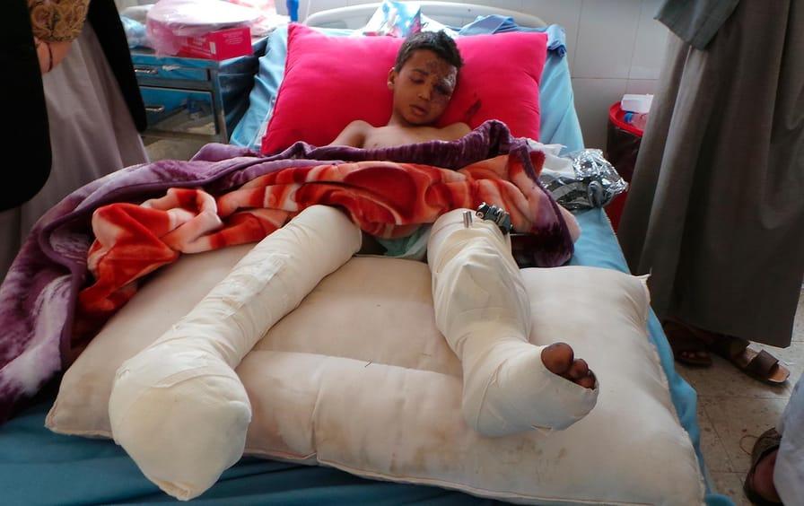 Yemen Bus Bomb Hospital
