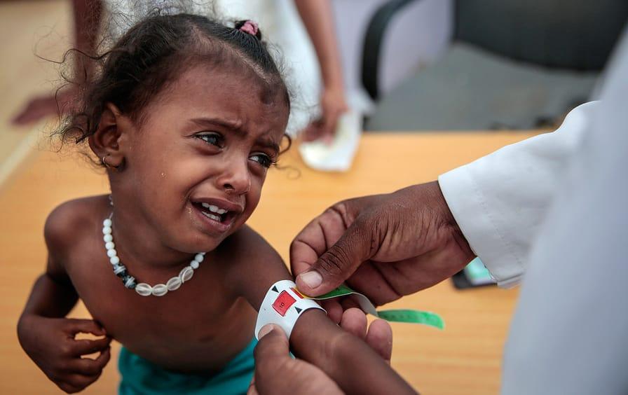 Yemen child arm measurement