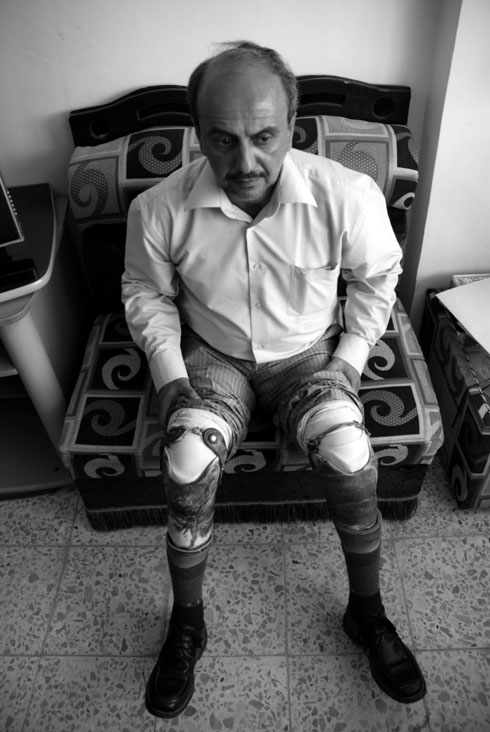 """On February 11, 1986, at the height of the Iran-Iraq war, Falah, a tank commander in Basra, lost his legs after his T-55 tank was hit by a rocket. He still wears the prosthetic legs given to him by the Iraqi government in 1987. Since 1991, the government has significantly reduced the benefits that he and other war amputees receive. Falah has had to repair his prostheses himself or at a car repair shop. At checkpoints in Baghdad, he says police often suspect he is a suicide bomber when they search his body and discover the wires he has used to repair his prosthetics. """"For a country that is so rich in resources, why are there so few services for disabled people, especially those injured serving Iraq in war?""""   Credit: Samer Muscati/Human Rights Watch"""