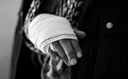 An injured photojournalist