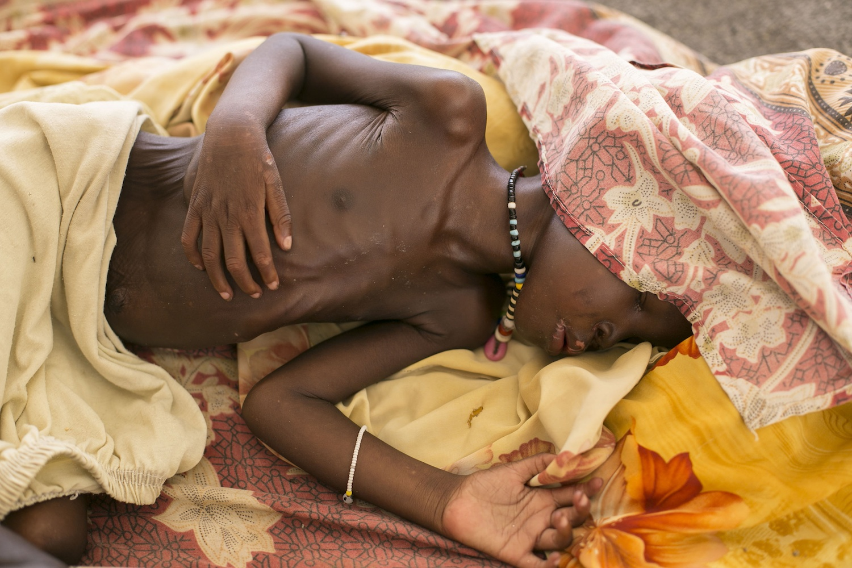 A-malnourished-child