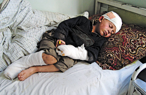 Injured-Afghan-boy