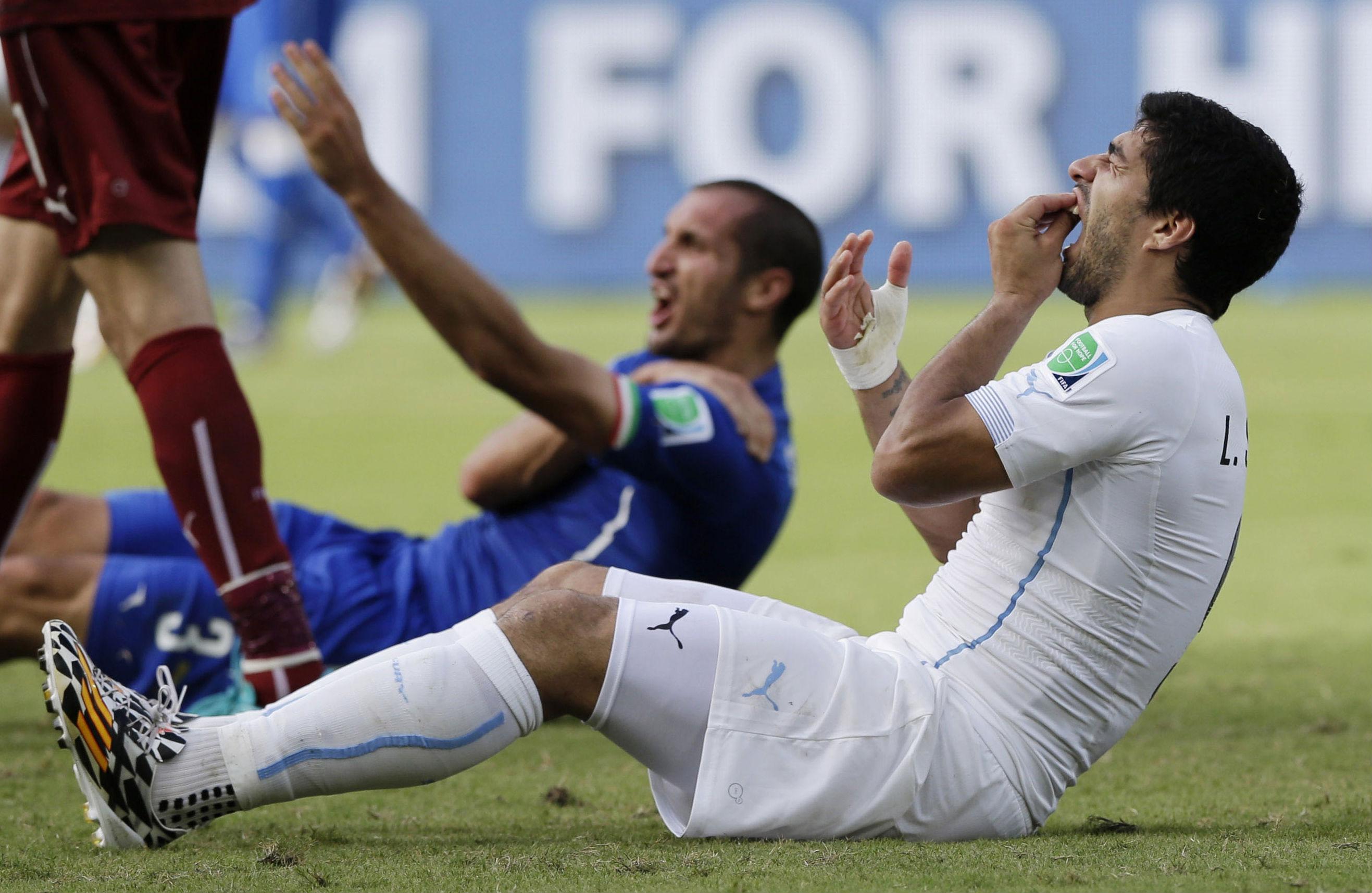 Luis-Suarez-Teeth