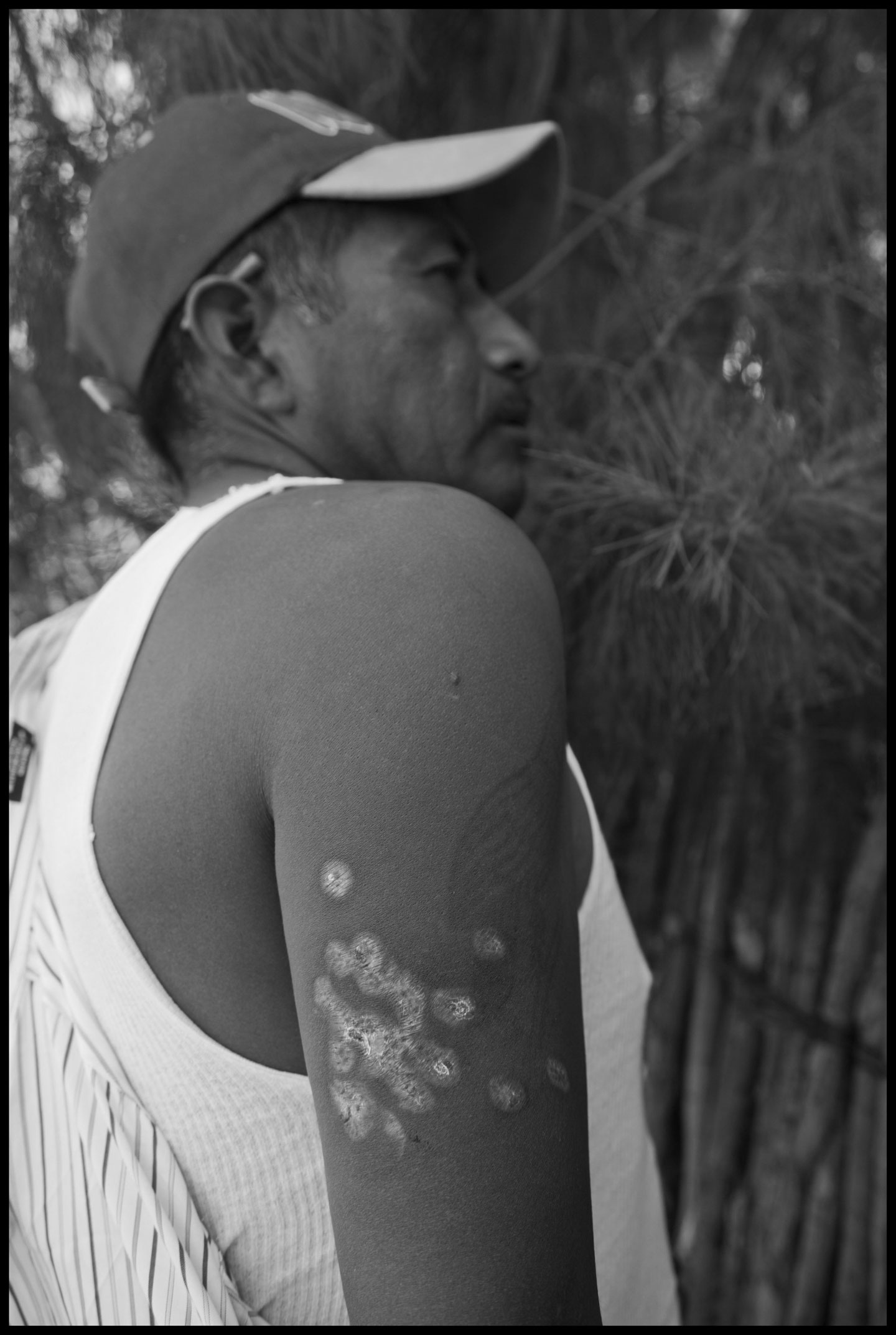 Faustino Hernandez, a leader of the FIOB in the San Quintin Valley, shows the wounds in his arm, received when he was shot by police during the farm-worker strike.